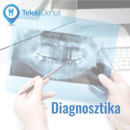 Dental diagnostics - dental screening