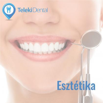 Cosmetic Dental Treatment!