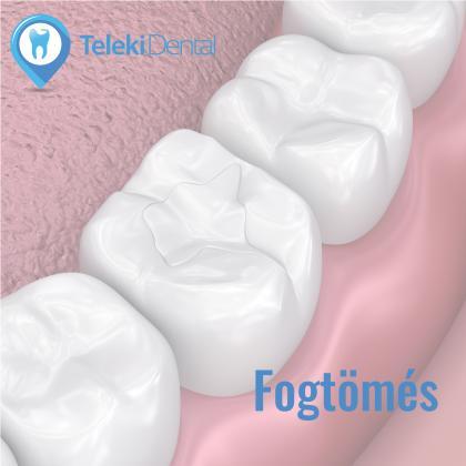 Conservative dental treatments